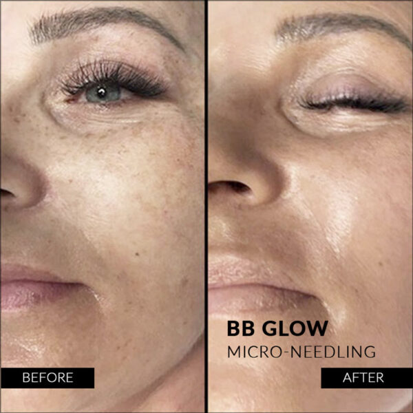 before-after BB glow treatment