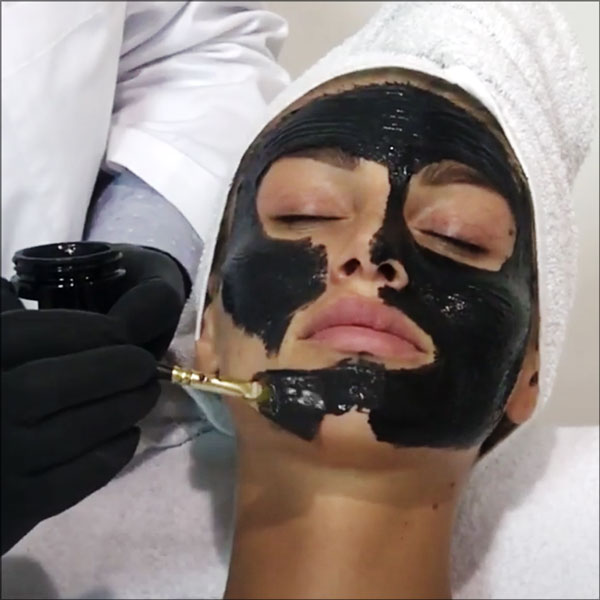 V-CARBON PEEL with Activated Carbon DEEP PEELING SYSTEM