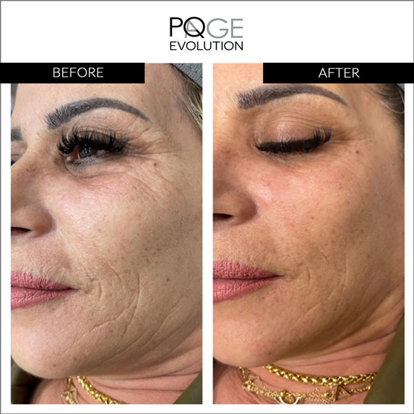 PQAge before after